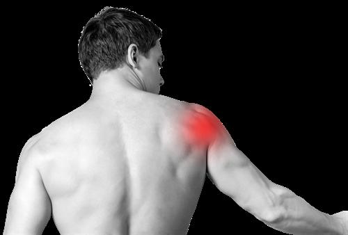 Wat is een Frozen Shoulder en welke behandeling helpt? Fysiotherapie van  Gelderen
